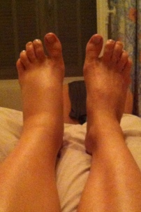 During my pregnancy, my left foot and calf area were particularly swollen