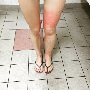 This was the beginning of a Cellulitis infection in 2016.