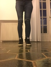 It' still a lymphie leg, but at least it fits into my skinny leg jeans again after some serious bandaging sessions!
