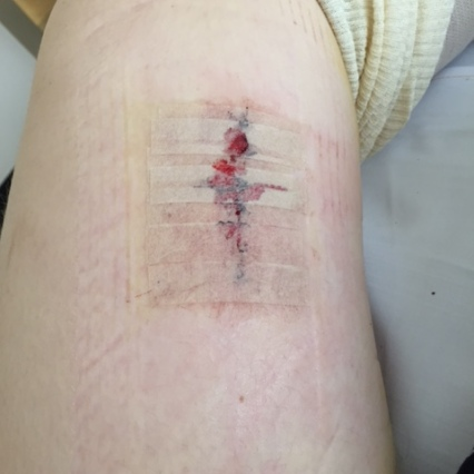 The nurse changed my dressing before I left and I took a sneaky pic of the knee ... doesn't look too bad?!