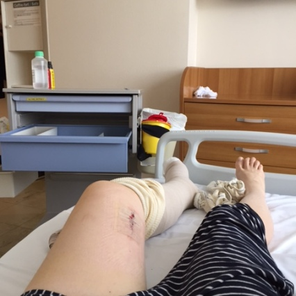 Another pic of the knee