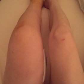My knee is very swollen and upper leg, but this is where the surgery took place so I expect this to be swollen.