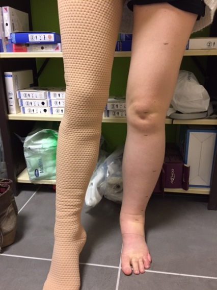 In this picture I have the stocking on my non-fatty leg. It was the demo model that I tried when I was being measured up for my custom made one so it doesn't exact fit my leg properly but you get an idea of how it looks.